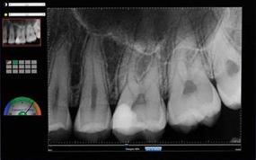 caries radiografia