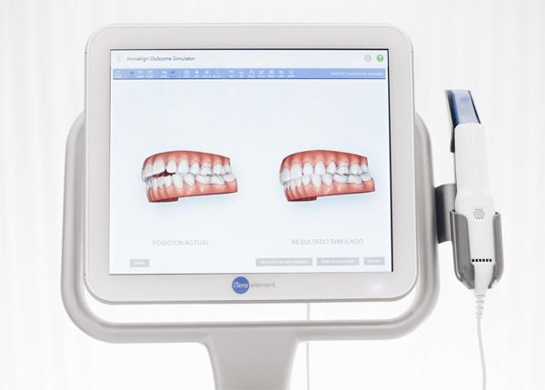 escaner intra oral