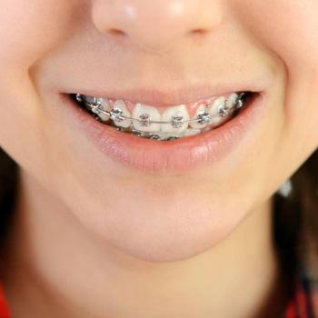 ortodoncia infantil fija