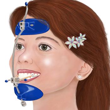 ortodoncia interceptiva infantil