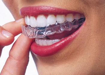 ortodoncia retenedor removible
